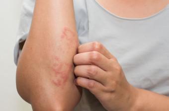 Svetovanje o negi kože in atopijski dermatitis