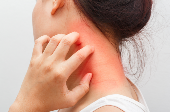 Seboroični dermatitis