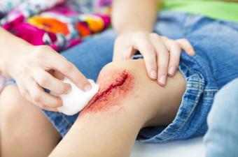 Kako pravilno oskrbeti poškodovano kožo