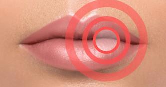Nega ustne votline pri aftah in herpesu