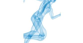 Osteoporoza - tiha bolezen