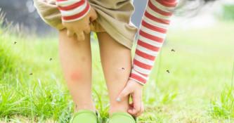 Piki žuželk in nega kože po pikih